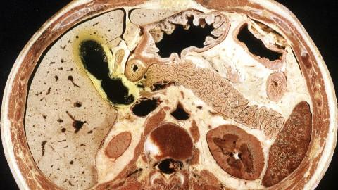 断层解剖学